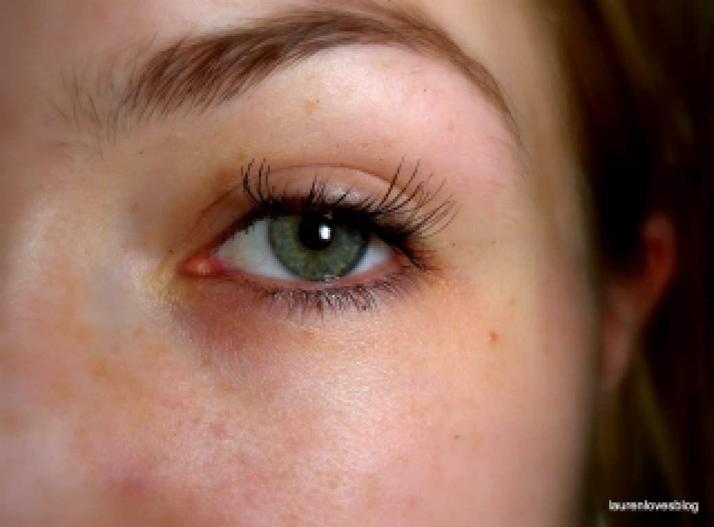 Ресницы растут в углу глаз