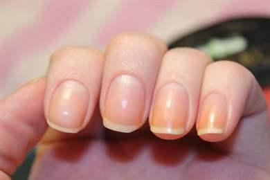 Желтые пятна на ногтях рук после гель лака
