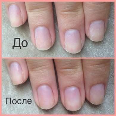 Чем быстро восстановить ногти после наращивания в домашних условиях 847