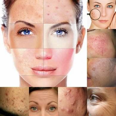 Очищение пор кожи лица