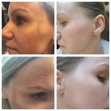 Выровнять кожу лица после прыщей в домашних условиях