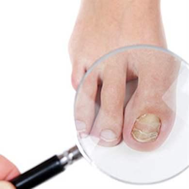 Перекись и уксус от грибка ногтей