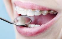 Cколько носят брекеты на зубах и виды брекет-систем